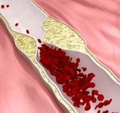 cholesterol-big